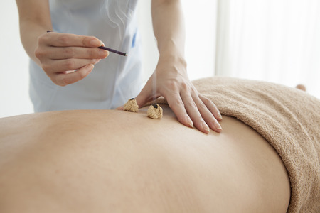 moxibustion: Women receiving moxibustion treatment Stock Photo
