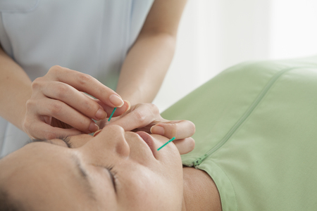 acupuncturist: Acupuncturist, acupuncture has hit the womans face