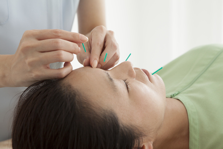 Women are receiving acupuncture to face Stock Photo