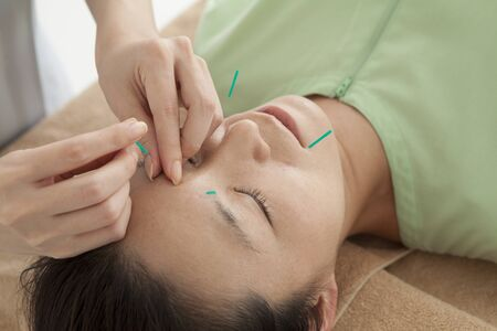 esthetic: Women are receiving acupuncture to face Stock Photo