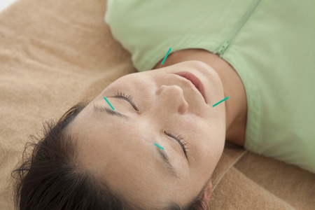 acupuncture: Women are receiving acupuncture to face Stock Photo