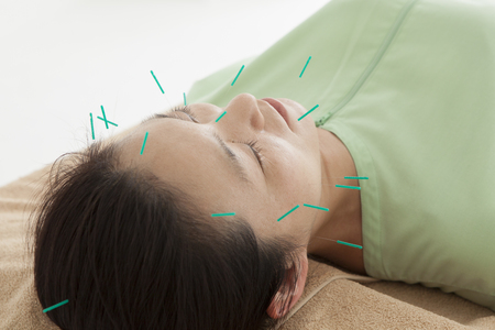 acupuncture: Women are receiving acupuncture lot to face Stock Photo