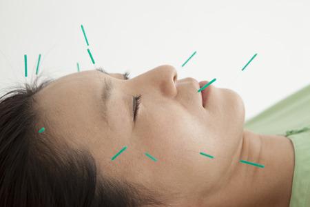 acupuntura china: Las mujeres se han relajado en respuesta a los muchos para hacer frente a la acupuntura Foto de archivo