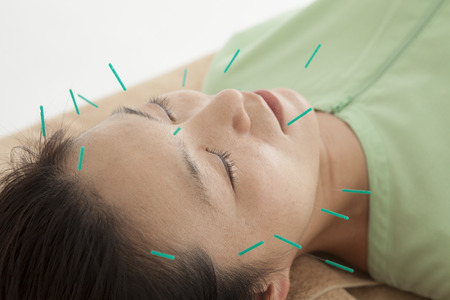 acupuncture needles: Women have been relaxed in response to the many acupuncture to face Stock Photo