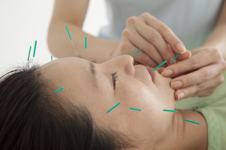 acupuncture: Women have been relaxed in response to the acupuncture to the entire face