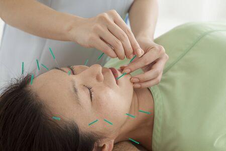 acupuntura china: Las mujeres se han relajado en respuesta a la acupuntura para toda la cara Foto de archivo