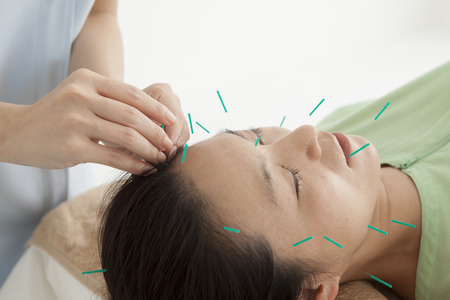 Women are relaxed by receiving acupuncture to face