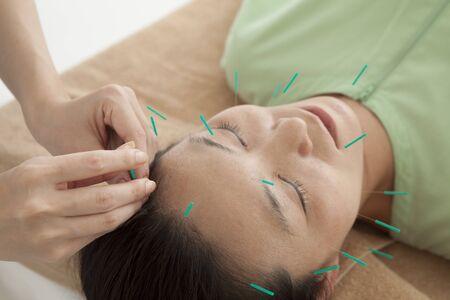 acupuntura china: Anti-envejecimiento tratamiento de la acupuntura en pacientes de sexo femenino atractivo Foto de archivo