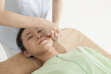 Anti-aging acupuncture treatment on attractive female patient