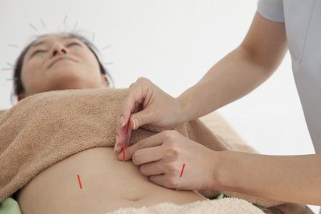 acupuntura china: Las mujeres est�n recibiendo acupuntura para el est�mago