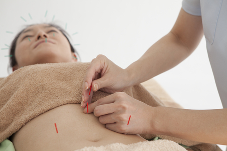 filiform: Women are receiving acupuncture to stomach