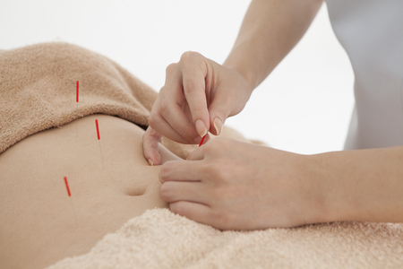 acupuncture needles: Women are receiving acupuncture treatment to stomach Stock Photo