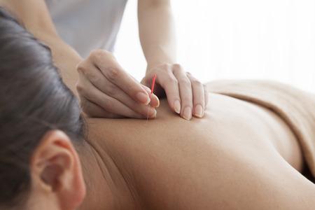 肩に鍼治療を受けてリラックスしている女性