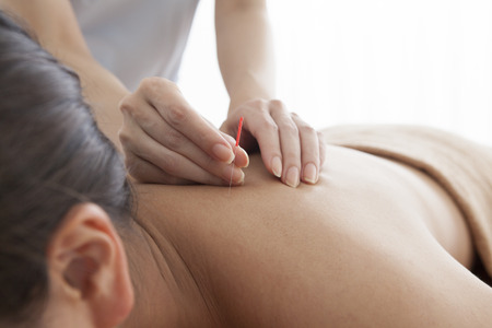 acupuncture needles: Women who are relaxed by receiving acupuncture to shoulder Stock Photo