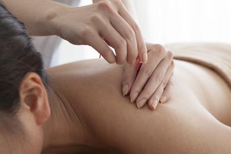 Les femmes qui sont détendus en recevant l'acupuncture à l'épaule