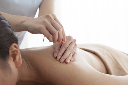 filiform: Women who are relaxed by receiving acupuncture to shoulder Stock Photo