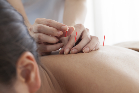 Women who are relaxed by receiving acupuncture on the neck