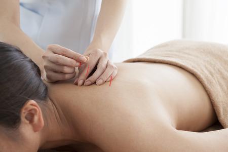 彼の背中に鍼を受けてリラックスしている女性