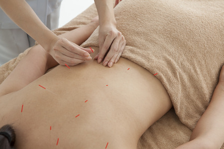 filiform: Pointing the acupuncture on the back of acupuncturists women