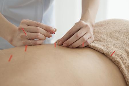 女性の治療は鍼灸
