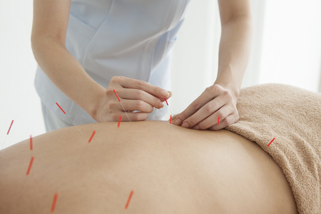 Acupuncturist is treating the woman Stock Photo