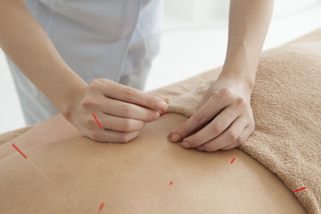 acupuncturist: Acupuncturist is treating the womans back Stock Photo