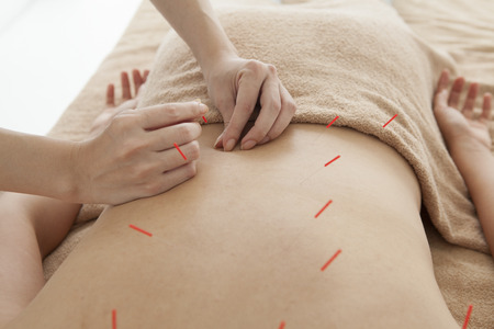 acupuncture needles: Acupuncturist is treating the womans back Stock Photo