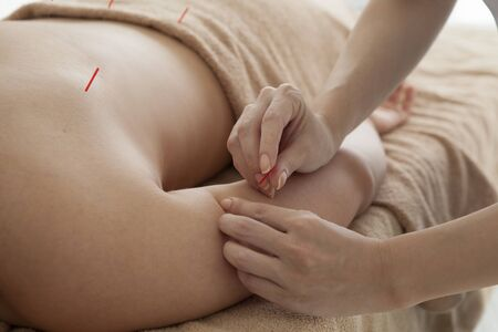 acupuncture needles: Women are receiving acupuncture treatment of arm