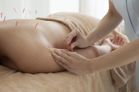 女性は腕の鍼治療を受けています。 写真素材