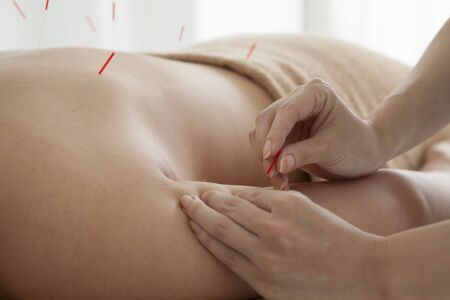 acupuncture: Women are receiving acupuncture treatment of arm
