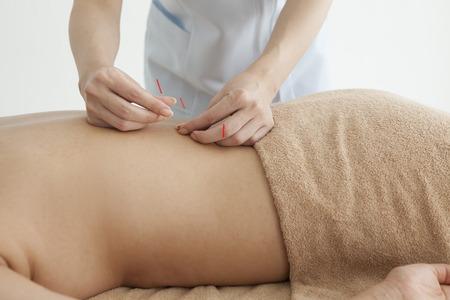 女性は、背中の鍼治療を受けています。