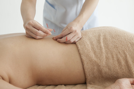 acupuncture: Women are receiving acupuncture treatment of back Stock Photo