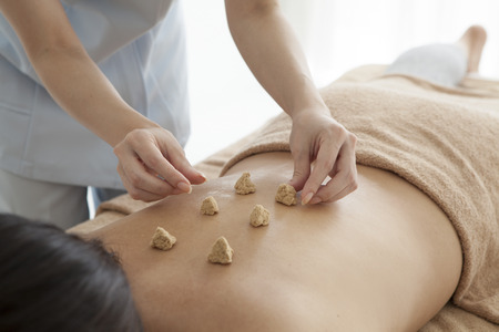 feels good: Women are placed moxibustion on the back Stock Photo