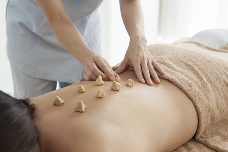moxibustion: Women are placed moxibustion on the back Stock Photo