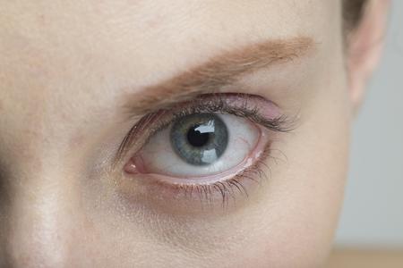 Blue eyes of women