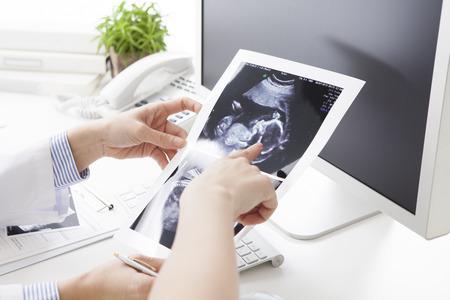 女性医師は、妊娠中の女性にエコー写真を表示します。 写真素材