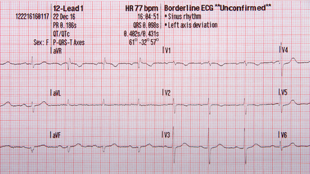 12-odprowadzeniowy pasek EKG pokazujący normalny rytm zatokowy z niepotwierdzonym odchyleniem lewej osi