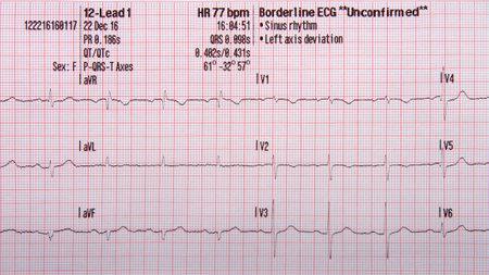 Tira de electrocardiograma de 12 derivaciones que muestra un ritmo sinusal normal con una desviación del eje a la izquierda no confirmada