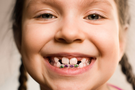 歯ブレースを示している笑顔女の子の肖像画を閉じます。