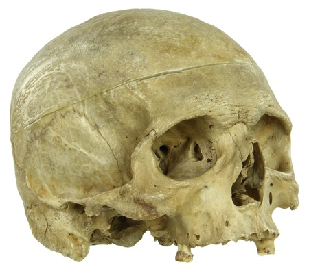 Actual human skull isolated on white Banque d'images