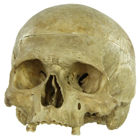 terrified: Actual human skull isolated on white Stock Photo