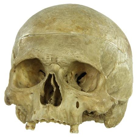 simbolo medicina: Real cr�neo humano aislado en blanco Foto de archivo