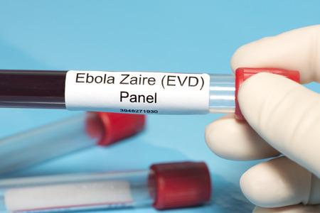 Technician holds Ebola Zaire blood test panel lab sample. photo