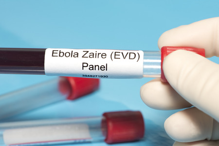 ebola: Technician holds Ebola Zaire blood test panel lab sample. Stock Photo