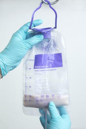 看護師には、IV ポールの経腸栄養バッグがハングアップします。