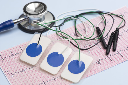 Electrocardiogram leads and electrocardiograph and stethoscope on blue table. Stock Photo