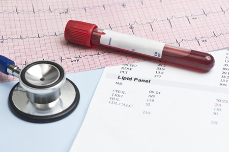 Laboratory report with lipid panel, stethoscope, and electrocardiograph.
