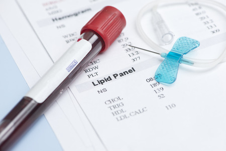 results: Blood collection tube and small blue butterfly catheter with lipid panel results. Stock Photo
