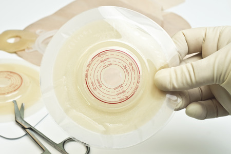 Ostomy wafer held by nurse with ostomy supplies.