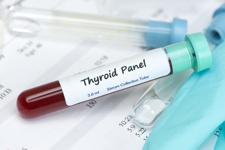 Thyroid hormone test blood sample in collection tube with laboratory report.   Label is fictitious, and any resemblance to any actual product is purely coincidental.